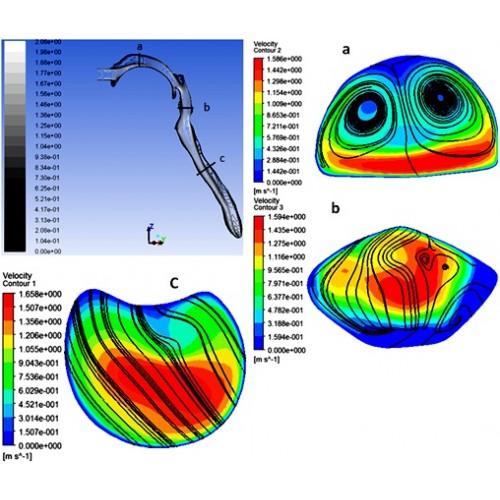 شبیه سازی عددی جریان هوا و نشست ذرات مایکرو در هندسه واقعی مجرای تنفسی بالایی انسان همراه با نگه داشتن نفس