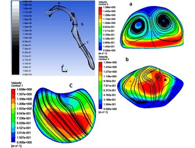 پروژه شبیه سازی عددی جریان هوا و نشست ذرات مایکرو در هندسه واقعی مجرای تنفسی بالایی انسان همراه با نگه داشتن نفس با استفاده از نرم افزار FLUENT